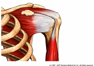 Biceps tendon kinkease