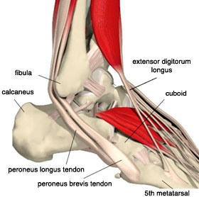 Martial Arts Injuries Foot Pain Tendonitis Of The Dorsum Of The Foot